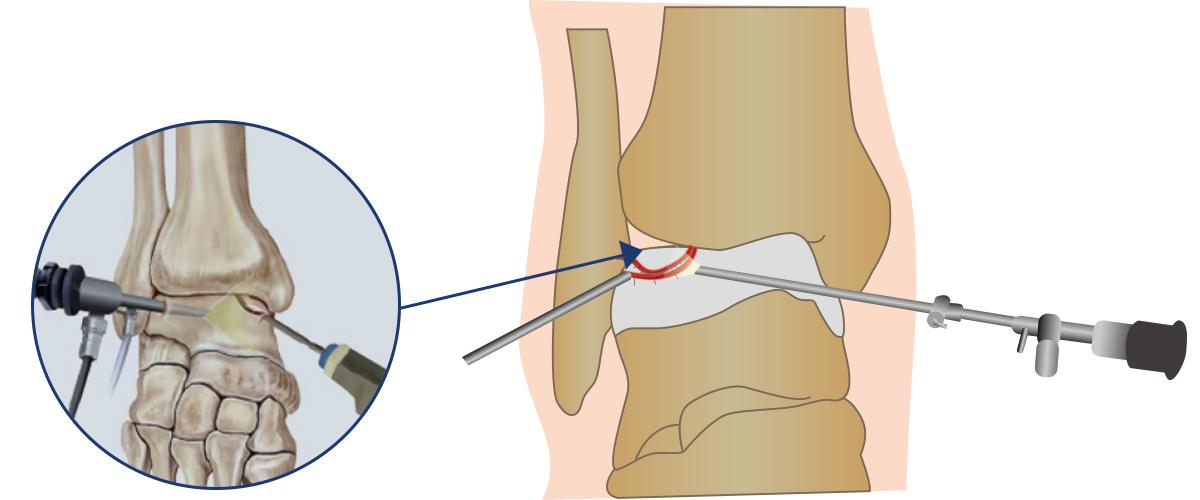 발목연골손상