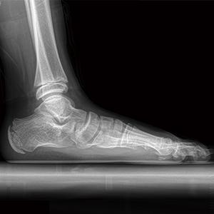 발목 사진1
