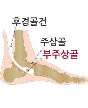 무릎클리닉2