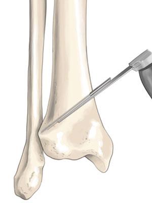 무릎클리닉1